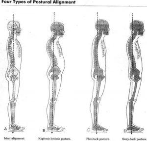 La posture de gauche est la posture idéale: celle qui aligne le lobe de l'oreille avec la pointe de l'épaule et le bassin.