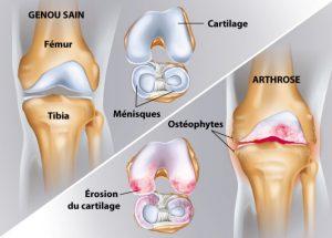 ortho-arthrose-genou